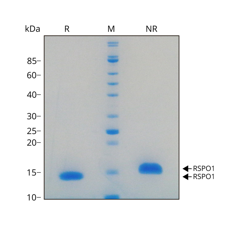 Recombinant human R-spondin-1 protein purity in SDS-PAGE