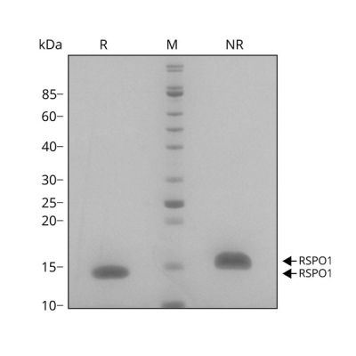 Human R-spondin 1 Qk006 protein purity SDS-PAGE lot #010