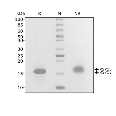 Human R-spondin 3 Qk032 protein purity SDS-PAGE lot #010