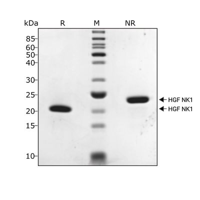 Human HGF Qk013 protein purity SDS-PAGE lot #010