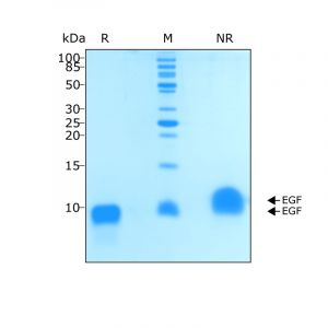 Recombinant human EGF protein purity in SDS-PAGE
