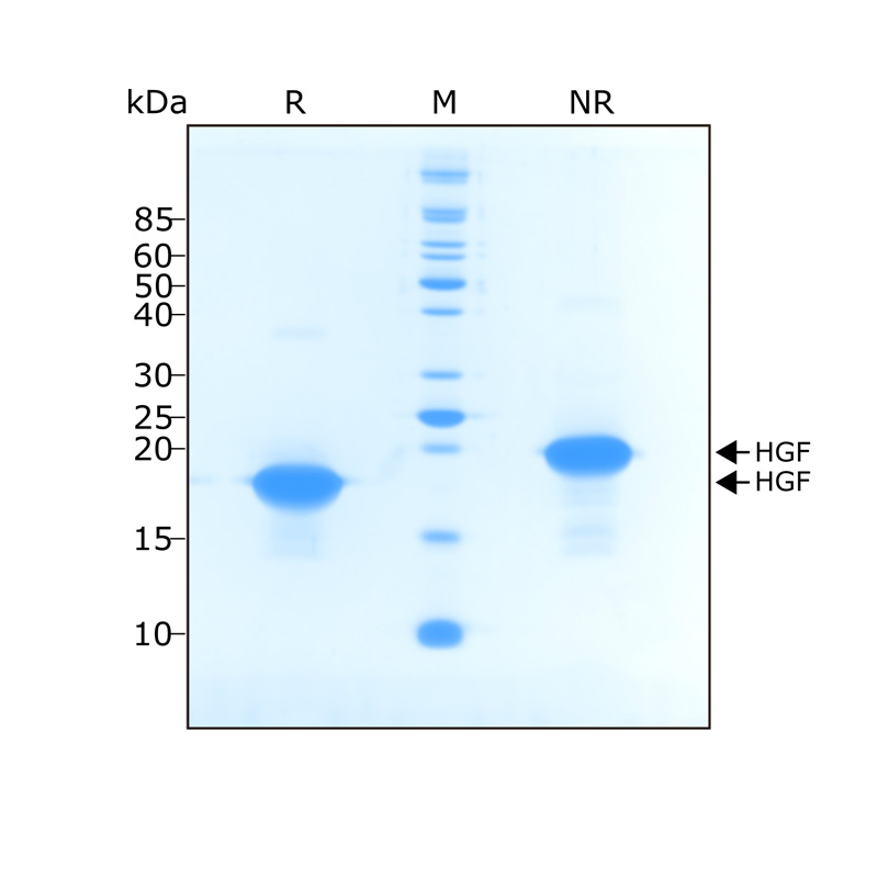 Recombinant HGF NK1 protein purity in SDS-PAGE