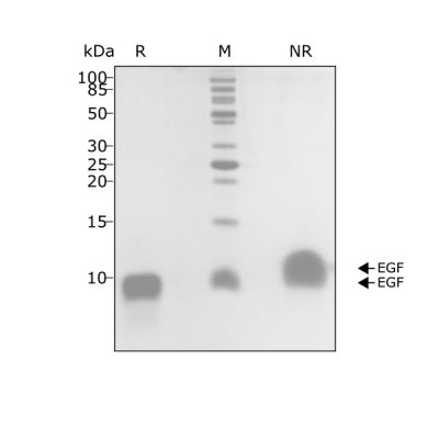 Human EGF Qk011 protein purity SDS-PAGE lot #011