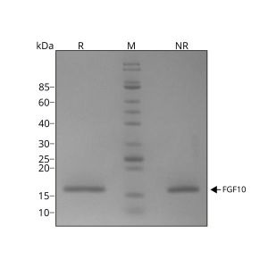 Human FGF-10 Qk003 protein purity SDS-PAGE lot #010