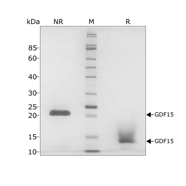 Human GDF15 Qk017 protein purity SDS-PAGE lot #011