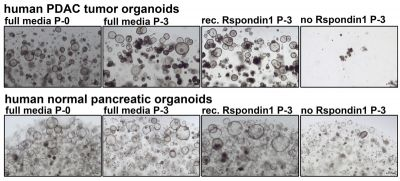 recombinant R-spondin 1 compared with conditioned media, data from Tuveson lab, CSHL