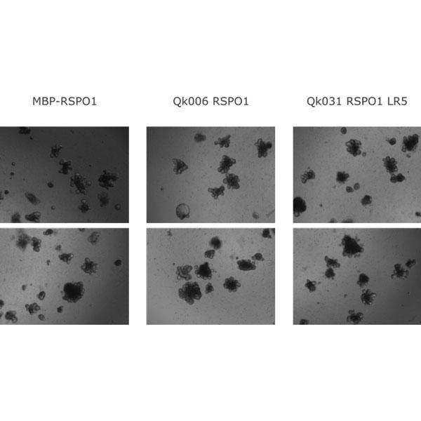 Mouse intestinal organoid culture morphology