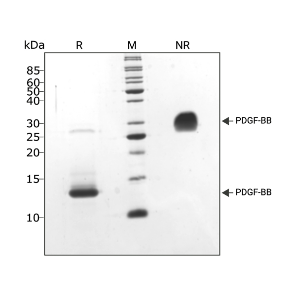 Human LIF Qk036 protein purity SDS-PAGE lot #14293